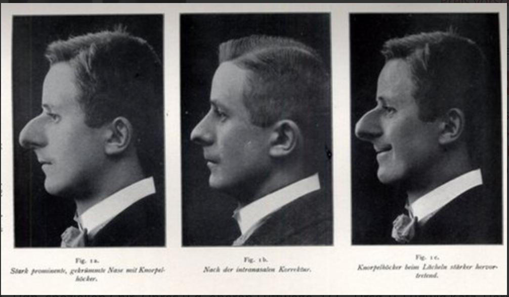 """Un'immagine dal libro di Jacques Joseph """" Korrektive Nasen- und Ohrenplastik"""" pubblicato nel 1912"""